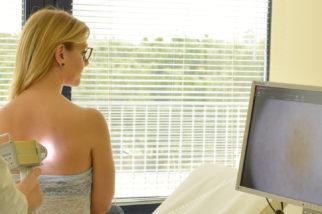 Videodermatoscopia: la prevenzione è la migliore cura